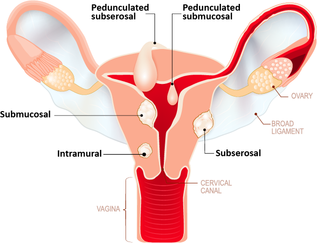 Fibroid locations